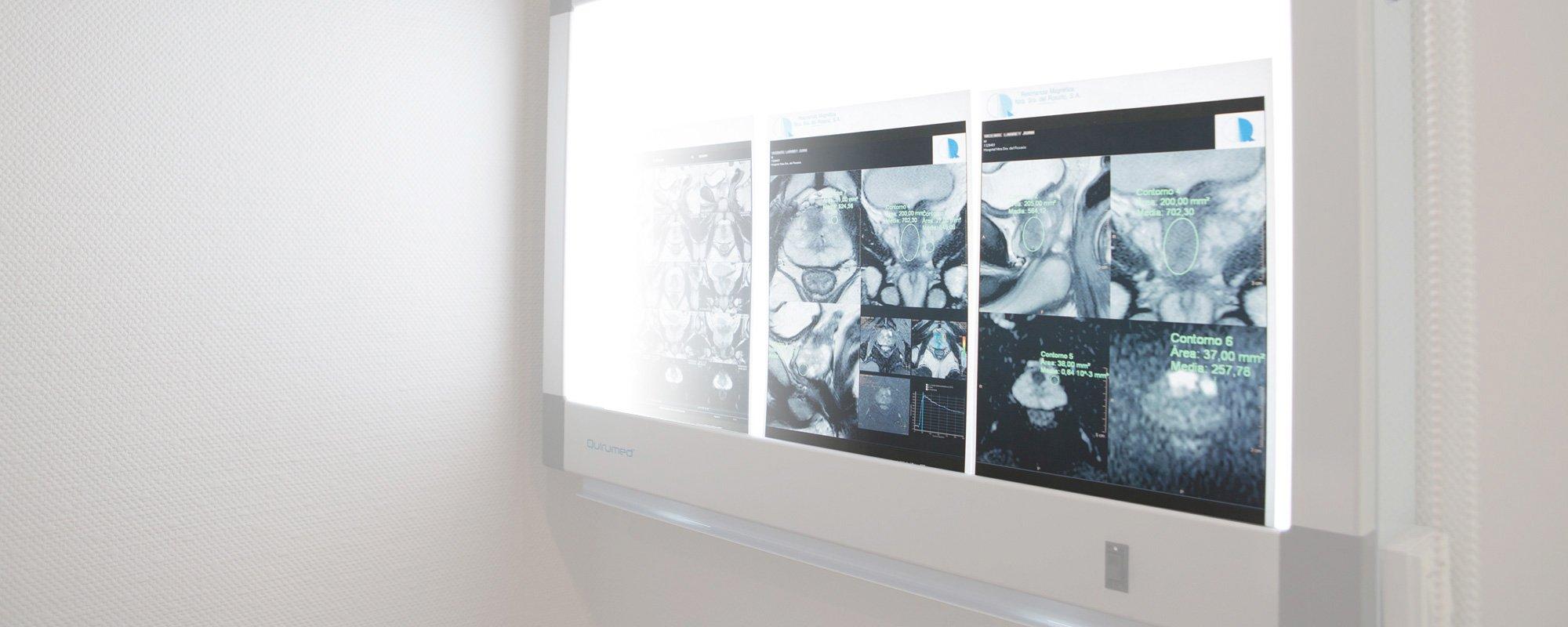 Urología de<br>vanguardia