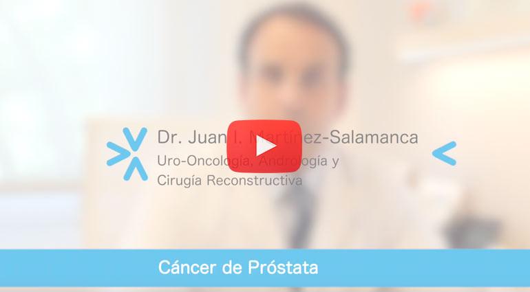 Qué tan efectiva es la radiación del haz externo para el cáncer de próstata