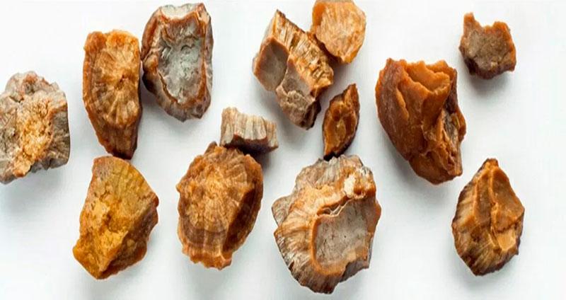 Piedras o cálculos renales