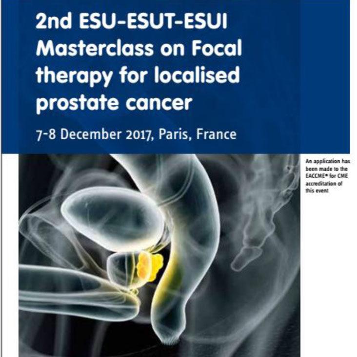 activar la vigilancia de próstata